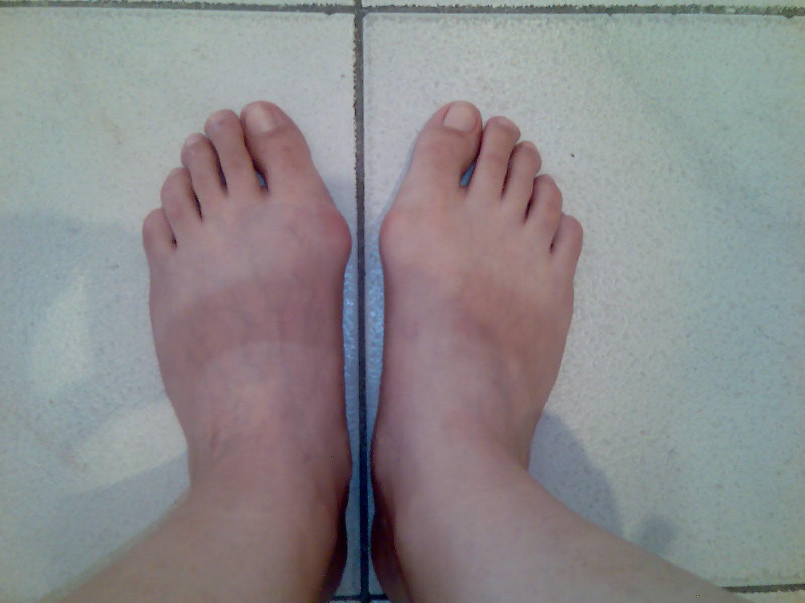 Выпирающая косточка на ноге причины как лечить
